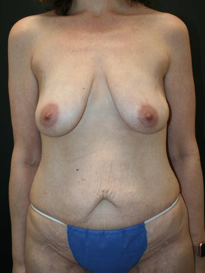 Massive Weight Loss Gallery - Patient 61782425 - Image 1