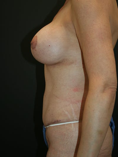 Panniculectomy Gallery - Patient 61782459 - Image 4