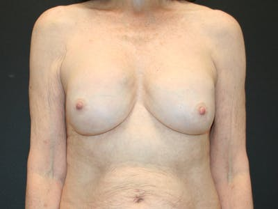 Breast Revision Gallery - Patient 61784198 - Image 1