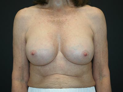 Breast Revision Gallery - Patient 61784198 - Image 2