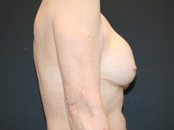 Breast Revision Gallery - Patient 61784198 - Image 3