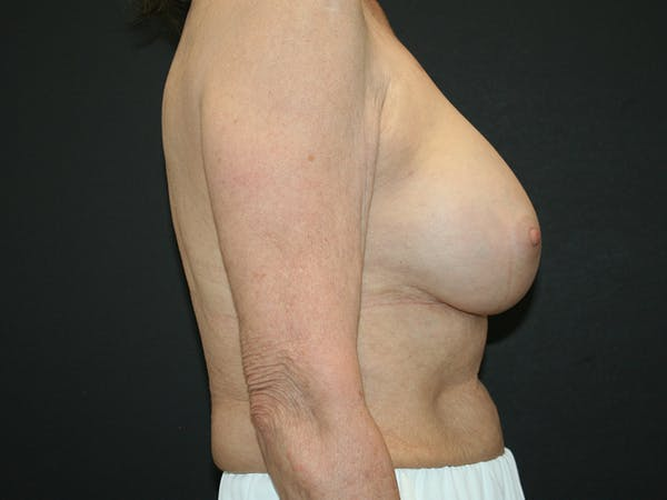 Breast Revision Gallery - Patient 61784198 - Image 4