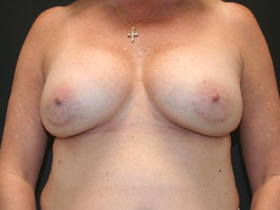 Breast Revision Gallery - Patient 61784199 - Image 1