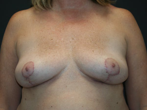 Breast Revision Gallery - Patient 61784199 - Image 2