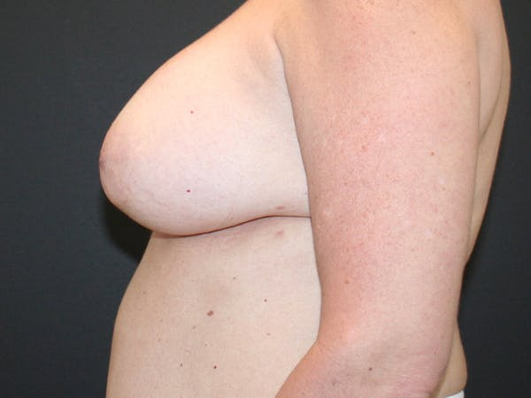 Breast Revision Gallery - Patient 61784199 - Image 3