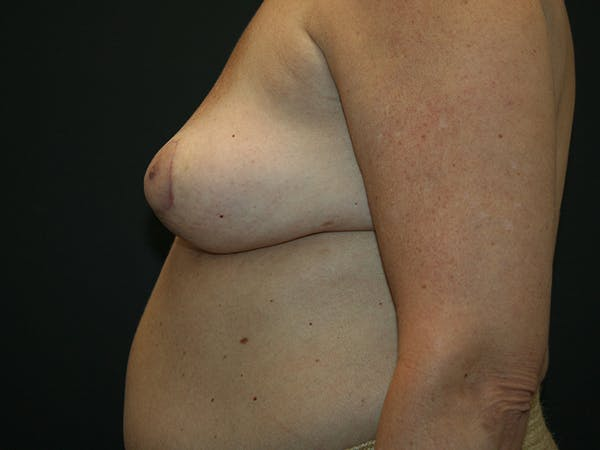 Breast Revision Gallery - Patient 61784199 - Image 4