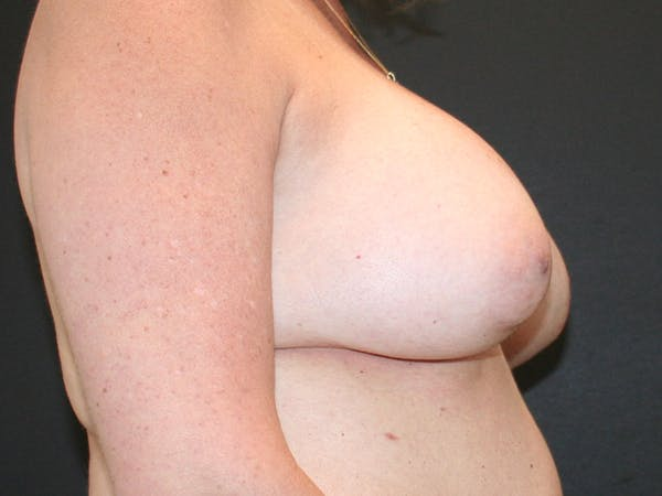 Breast Revision Gallery - Patient 61784199 - Image 5