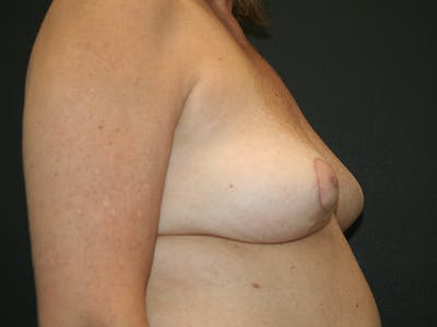 Breast Revision Gallery - Patient 61784199 - Image 6
