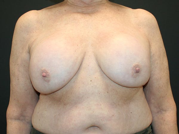 Breast Revision Gallery - Patient 61784200 - Image 1