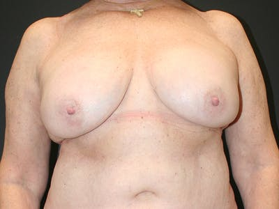 Breast Revision Gallery - Patient 61784200 - Image 2