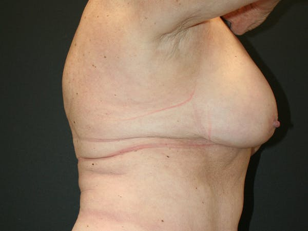Breast Revision Gallery - Patient 61784200 - Image 4