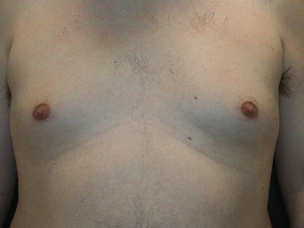 Gynecomastia  Gallery - Patient 61784764 - Image 1