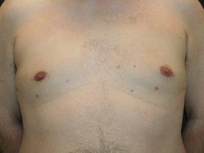 Gynecomastia  Gallery - Patient 61784764 - Image 2
