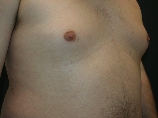 Gynecomastia  Gallery - Patient 61784764 - Image 3
