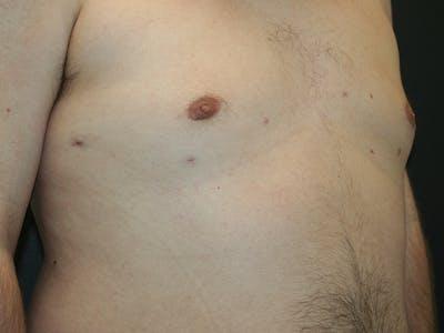 Gynecomastia  Gallery - Patient 61784764 - Image 4