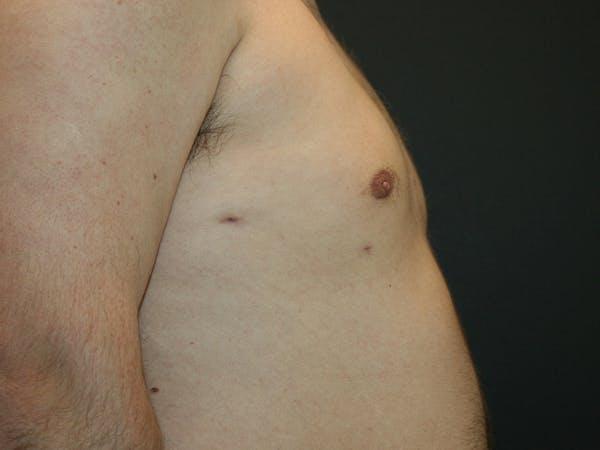 Gynecomastia  Gallery - Patient 61784764 - Image 6