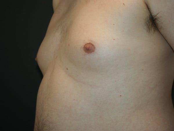 Gynecomastia  Gallery - Patient 61784764 - Image 7