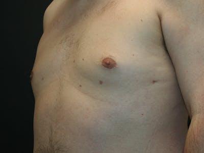 Gynecomastia  Gallery - Patient 61784764 - Image 8