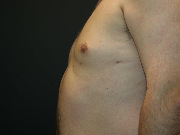 Gynecomastia  Gallery - Patient 61784764 - Image 10