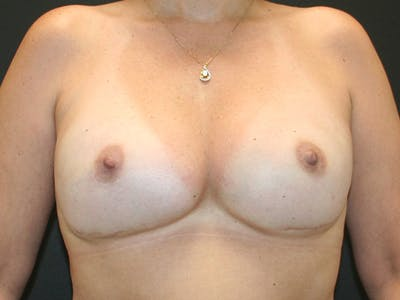 Breast Reconstruction Gallery - Patient 63629052 - Image 1