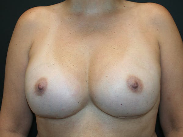 Breast Reconstruction Gallery - Patient 63629052 - Image 2