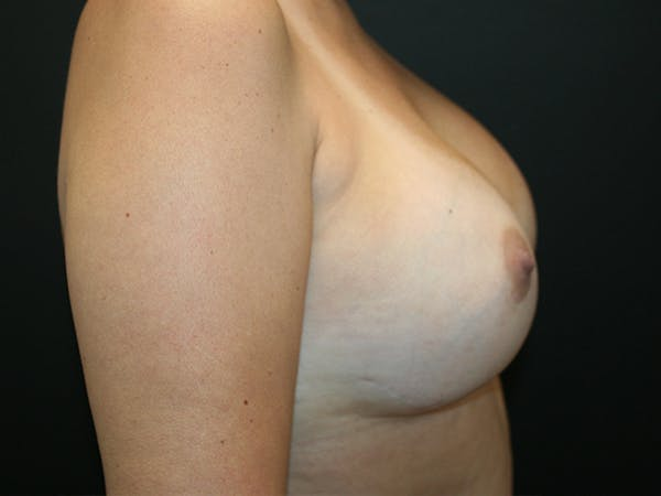 Breast Reconstruction Gallery - Patient 63629052 - Image 4