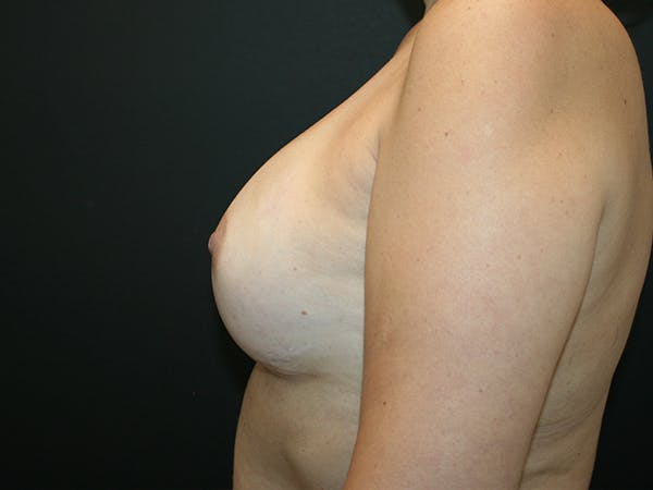 Breast Reconstruction Gallery - Patient 63629052 - Image 6