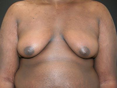 Gynecomastia  Gallery - Patient 63629057 - Image 1