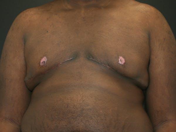 Gynecomastia  Gallery - Patient 63629057 - Image 2