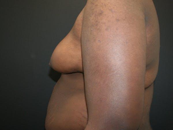 Gynecomastia  Gallery - Patient 63629057 - Image 3
