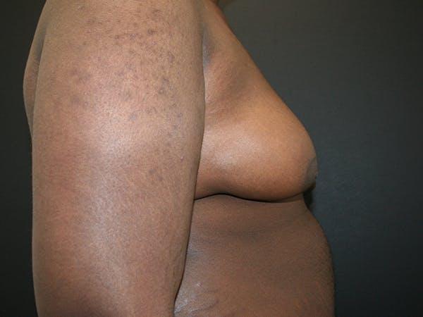 Gynecomastia  Gallery - Patient 63629057 - Image 5