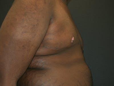 Gynecomastia  Gallery - Patient 63629057 - Image 6