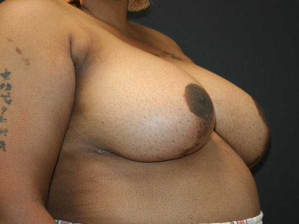 Breast Reduction Gallery - Patient 63629079 - Image 5