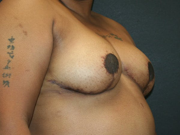 Breast Reduction Gallery - Patient 63629079 - Image 6
