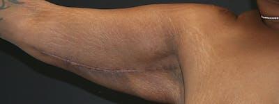 Brachioplasty Gallery - Patient 63629055 - Image 4