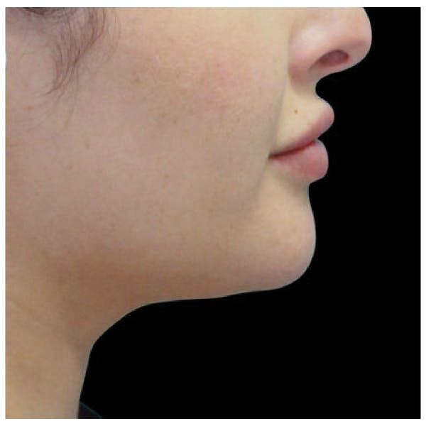 Coolsculpting Gallery - Patient 24400665 - Image 2