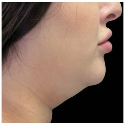 Coolsculpting Gallery - Patient 24400665 - Image 1