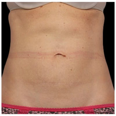 Coolsculpting Gallery - Patient 24400666 - Image 2
