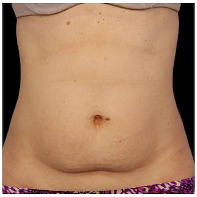 Coolsculpting Gallery - Patient 24400666 - Image 1