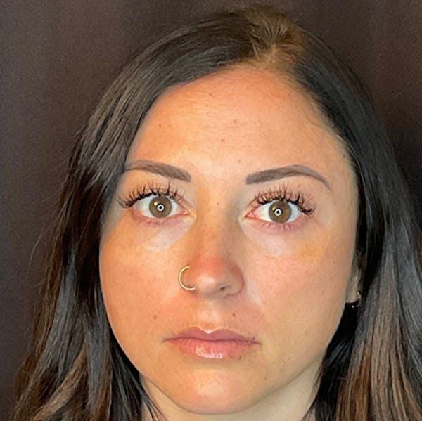 Botox Gallery - Patient 39995552 - Image 2