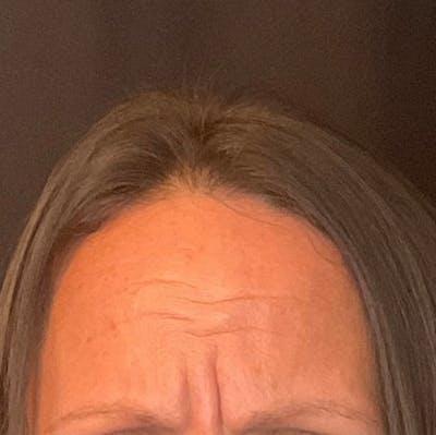 Botox Gallery - Patient 39995553 - Image 1