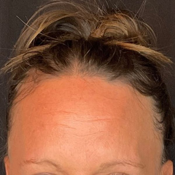 Botox Gallery - Patient 39995553 - Image 2