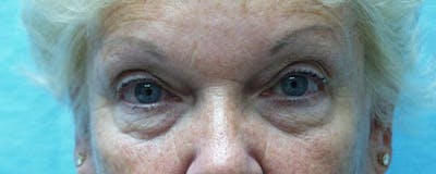 Blepharoplasty Gallery - Patient 23532691 - Image 1