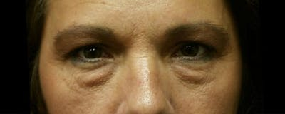 Blepharoplasty Gallery - Patient 23532692 - Image 1