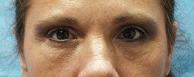 Blepharoplasty Gallery - Patient 23532692 - Image 2