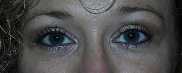 Blepharoplasty Gallery - Patient 23532693 - Image 2