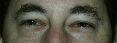 Blepharoplasty Gallery - Patient 23532695 - Image 1