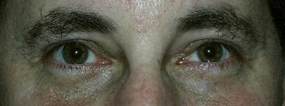 Blepharoplasty Gallery - Patient 23532695 - Image 2