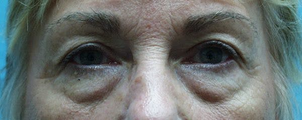 Blepharoplasty Gallery - Patient 23532696 - Image 1