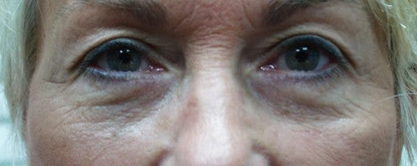 Blepharoplasty Gallery - Patient 23532696 - Image 2